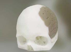 دراسة: الطباعة ثلاثية الأبعاد للأطراف وسيلة فعّالة لإنقاذ الأرواح