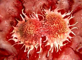 زيادة الإصابة بسرطان القولون في البلدان مرتفعة الدخل