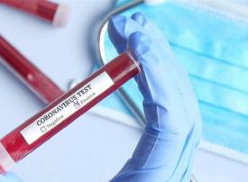 الصين.. انخفاض في عدد الاصابات بفيروس كورونا وحصيلة الوفيات تبلغ 2,345