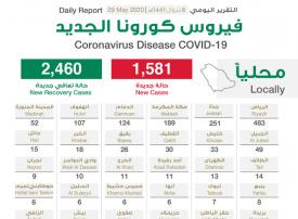 """السعودية تسجل 1581 إصابة جديدة بـ""""كورونا"""".. والإجمالي يرتفع إلى 81766"""