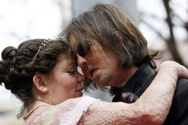 بالصور: أمريكي أجريت له أول عملية زرع وجه يتزوج ضحية حريق