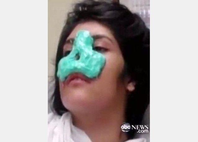 بالصور: عائشة الأفغانية التي تحدّت طالبان تستعيد أنفها