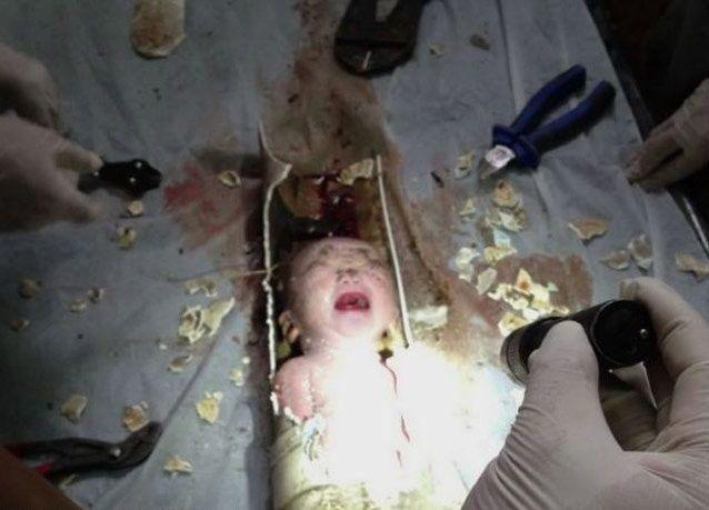 صور صادمة: فريق إنقاذ صيني ينتشل رضيعاً أغرقته والدته في المرحاض