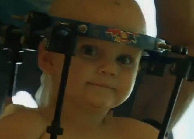 بالصور : جراحون يعيدون رأس طفل مفصول إلى مكانه