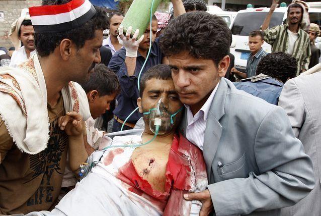 هجوم انتحاري يودي بحياة 20 شخصا في اليمن