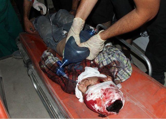 صور صادمة من الحرب الأهلية السورية