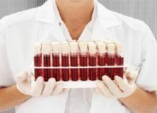 علماء: دم صناعي خلال 10 سنوات