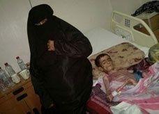 """مرض جلدي يحول سعودياً إلى """"هيكل عظمي"""""""