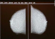 كبر حجم الثدي قد يكون مؤشرا على احتمال إصابته بمرض السرطان