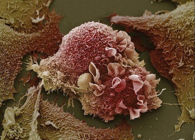 صور ميكروسكوبية من داخل جسم الإنسان