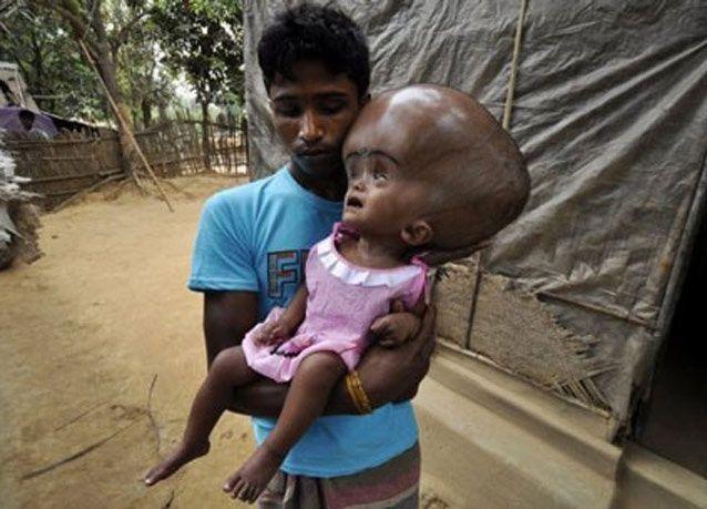 """بالصور: عملية جراحية مجانية لطفلة تعاني من """"تورم بالدماغ"""""""