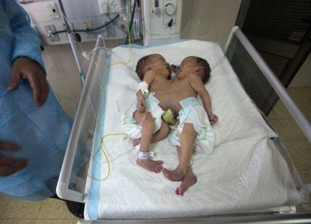 """بالصور: أول حالة """"توأم سيامي"""" في فلسطين"""