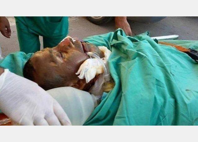 وفاة والد الرضيع دوابشة الذي قتل حرقا في الضفة الغربية