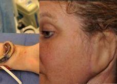 أول عملية زراعة في التاريخ لأذن من غضروف الصدر