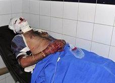 100 مصاب ينقلون إلى المستشفى الرئيسي بدمشق يوميا