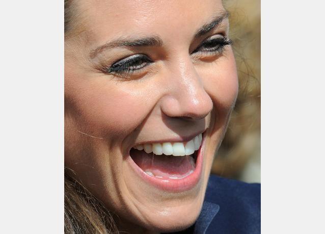 أنف الدوقة كيت ميدلتون الأكثر طلبا بعالم عمليات التجميل