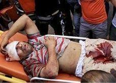 وزارة الصحة المصرية: 52 قتيلاً و2619 مصاباً