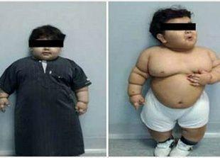 سعودي عمره سنتين يصبح أصغر شخص يخضع لجراحة تصغير المعدة