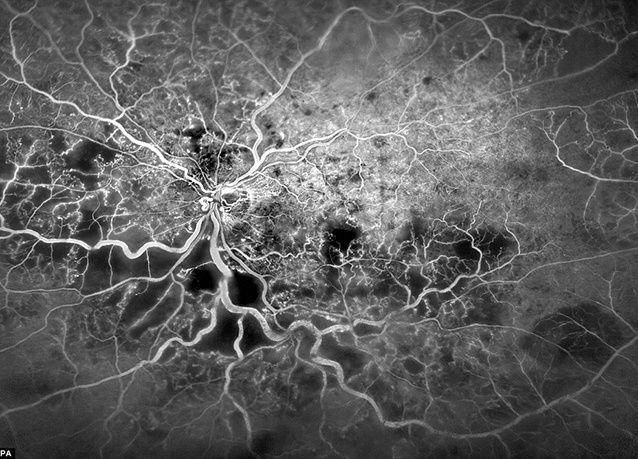 """أفضل الصور العلمية المرشحة لجائزة """"ويلكوم"""" للتصوير 2016"""
