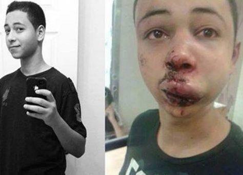 تمديد احتجاز فتى فلسطيني بعد تعرضه لضرب وحشي على يد اسرائيليين