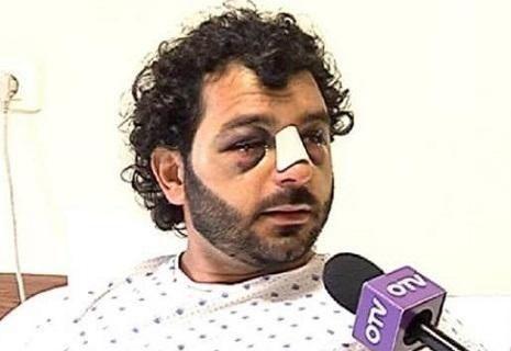 ضرب وحشي في لبنان لشاب بسبب الاشتباه بأنّه سوري