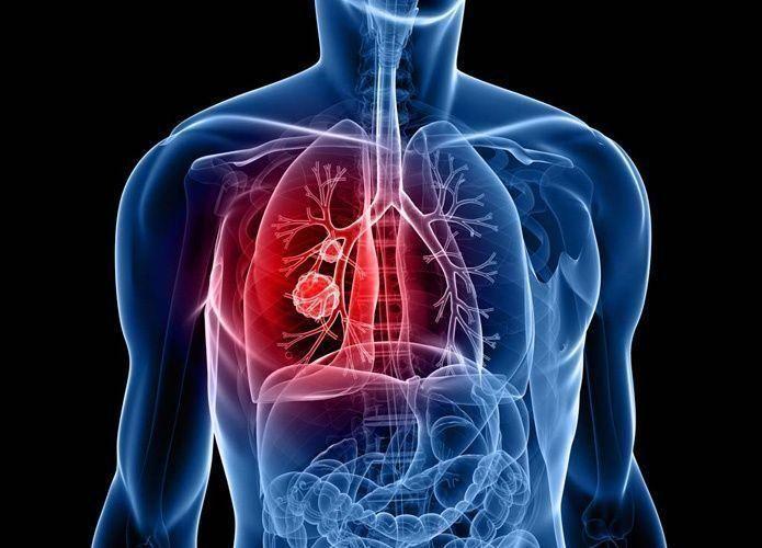 العلاج المخصص لسرطان الرئة يزيد معدلات النجاة 4 أضعاف