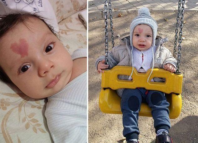 """بالصور : """"سينار"""" طفل تركي ولد بوحمة على شكل قلب"""