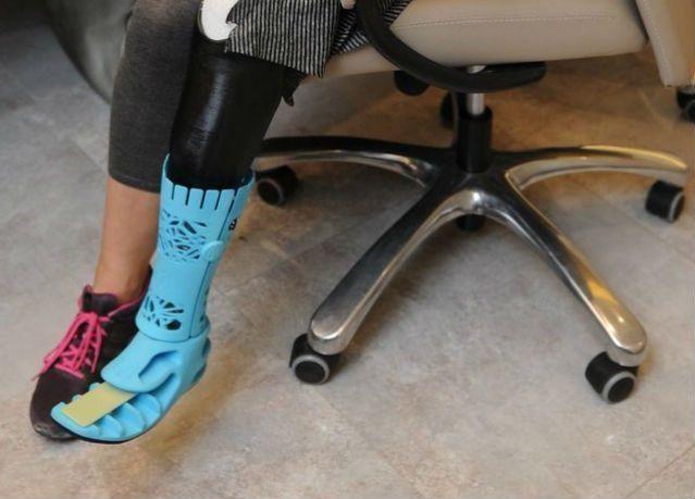 """""""صحة دبي"""" تنجز أول ساق اصطناعية ثلاثية الأبعاد في الشرق الأوسط"""