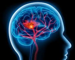 نصف مرضى السكتة الدماغية بالإمارات أقل من 45 عاماً