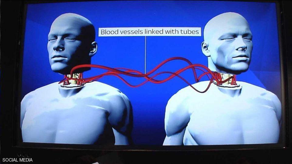 إجراء أول عملية ناجحة لزراعة رأس جثة بشرية