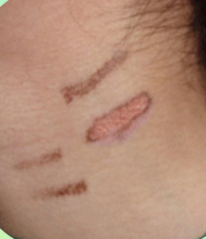 التحذير من حروق إزالة الشعر بالليزر  لدى غير المختصين