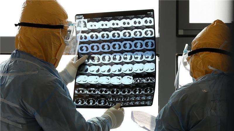 لأول مرة، شفاء مريض بفيروس كورونا بعد  إصابة سائل الدماغ