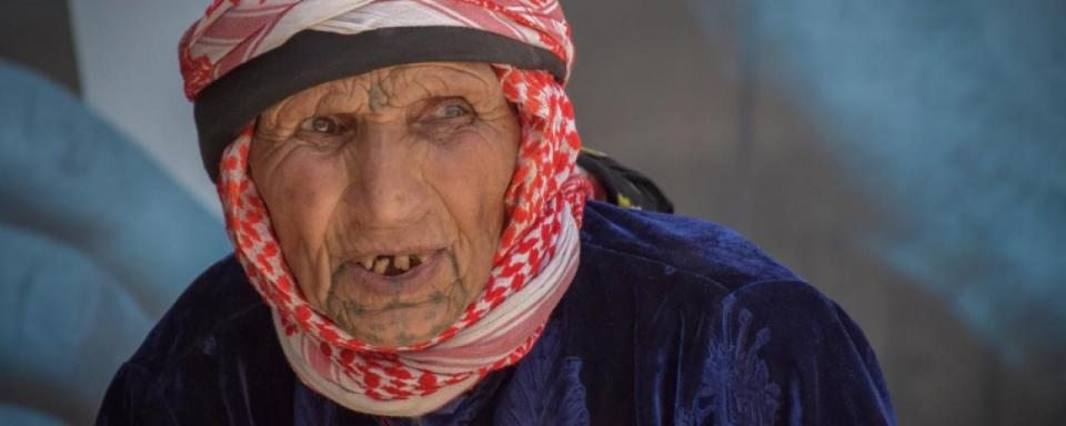 تحذير من وفاة 12000 يوميا بسبب المجاعةالتي سيفوق ضحاياها وفيات كورونا المستجد في سوريا واليمن وأفغانستان